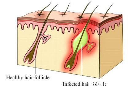 nang long Biểu hiện và cách điều trị bệnh viêm nang lông