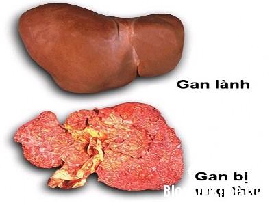 gan5 Ung thư gan có phòng bệnh được không?