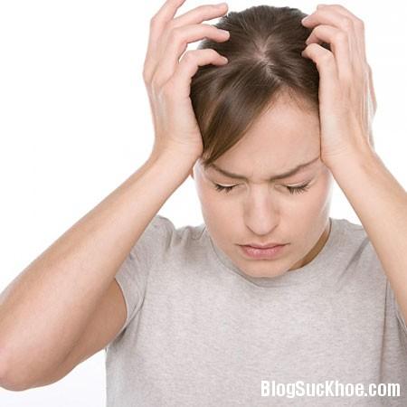 dau dau Dấu hiệu đau đầu cảnh báo bệnh nguy hiểm