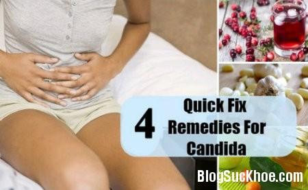 nam4 Các triệu chứng nhiễm trùng nấm Candida