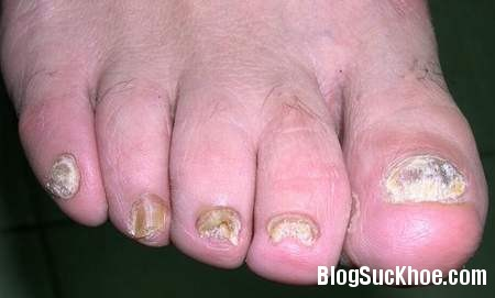 114 Một số bệnh thường gặp ở chân