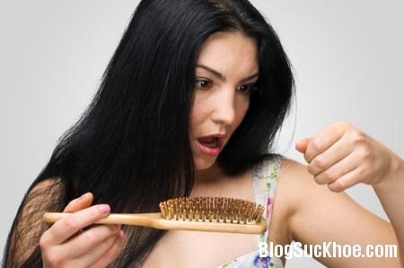 1197 Mẹo giúp bạn giảm rụng tóc sau sinh