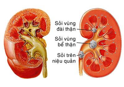 144 Bài thuốc chữa sỏi tiết niệu