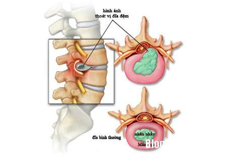 thoat vi dia dem Tiêm Steroid giảm đau dây thần kinh tọa do thoát vị đĩa đệm