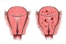 1305 Các phương pháp điều trị bệnh lạc nội mạc tử cung