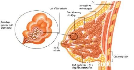 1320 Những bệnh tuyến vú lành tính thường gặp