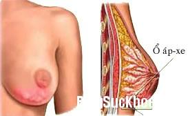 217 Những bệnh tuyến vú lành tính thường gặp