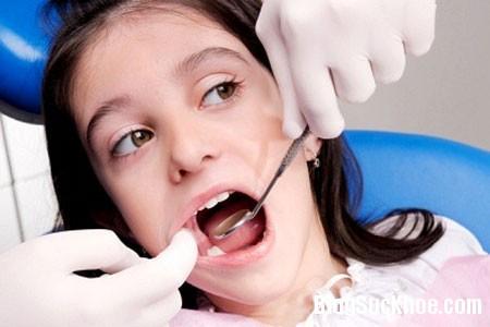 14 Điều trị bệnh sâu răng