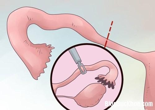 61 Dấu hiệu nhận biết sớm mang thai ngoài tử cung