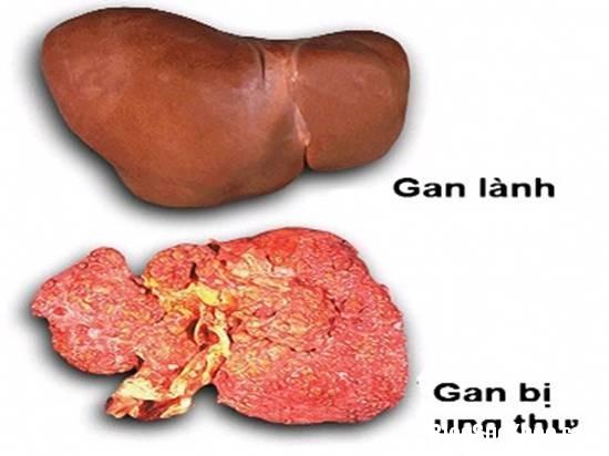 1244 Các phương pháp điều trị ung thư gan