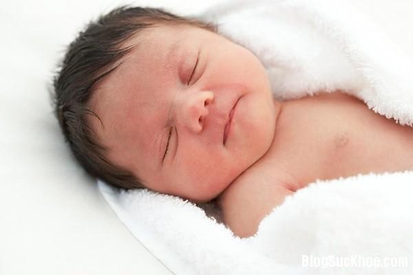 1296 Mẹo hay trị sạch cứt trâu trên đầu cho bé
