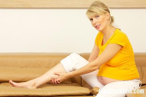 1192 Cách khắc phục chứng phù chân khi mang thai
