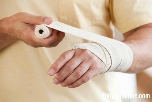 1288 Nguyên tắc điều trị một vết thương cho mau lành