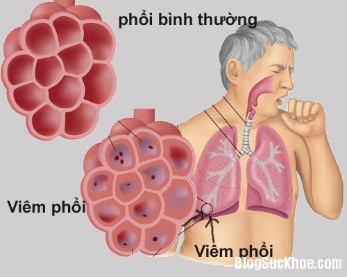 165 Một số triệu chứng bệnh viêm phổi