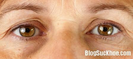 1136 Thực phẩm giúp loại bỏ nếp nhăn vùng mắt