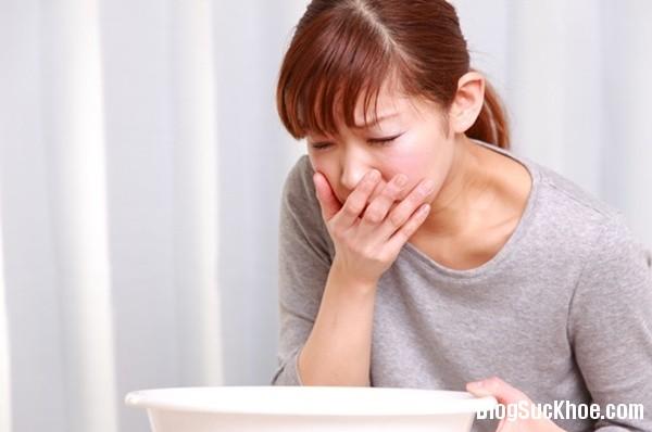 1221 7 cách giúp giảm triệu chứng trào ngược dạ dày thực quản