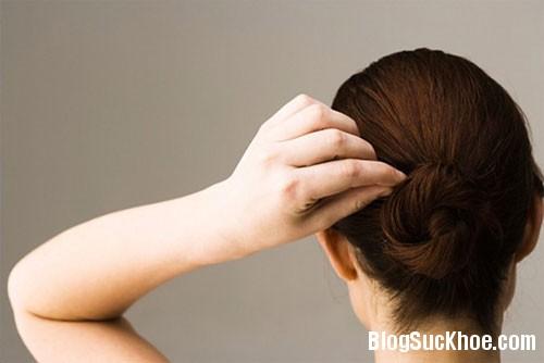 1228 Nguyên nhân khiến tóc bạc sớm