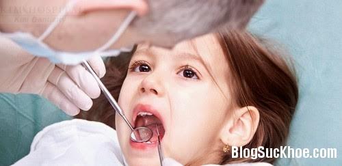 1393 Bệnh răng miệng trẻ dưới 3 tuổi thường gặp