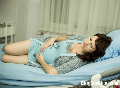 1398 Nguyên nhân và cách phòng bệnh trĩ khi mang thai