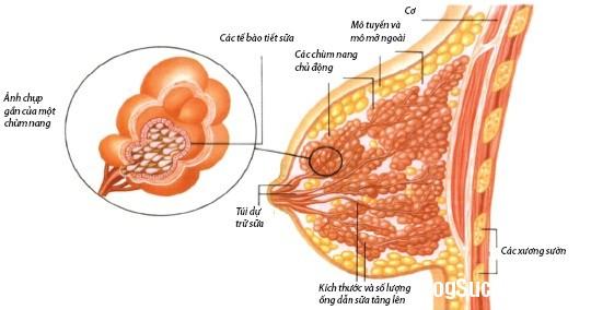 187 Các bệnh tuyến vú lành tính