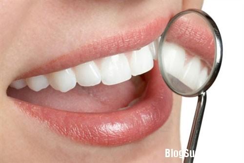 212 Cách chữa chảy máu chân răng