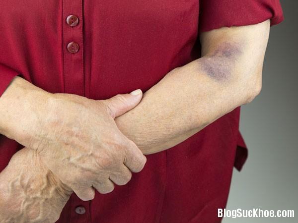 1137 Những bệnh nguy hiểm liên quan đến vết bầm tím