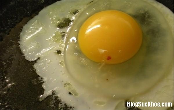 1192 Những lưu ý cho người hay ăn trứng
