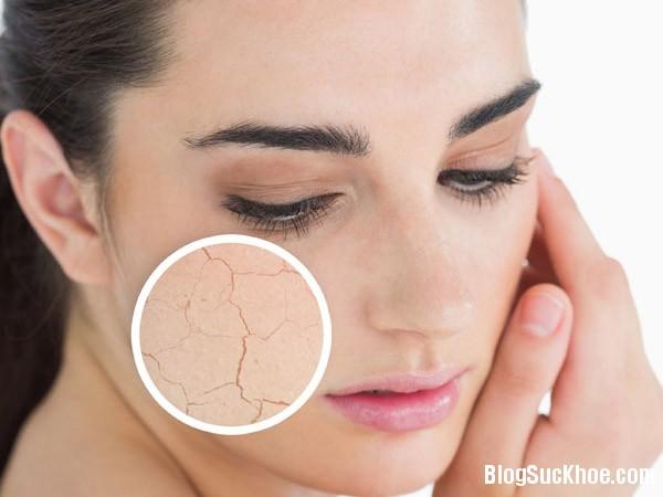 130 Biến da khô trở nên mịn màng chỉ trong nháy mắt