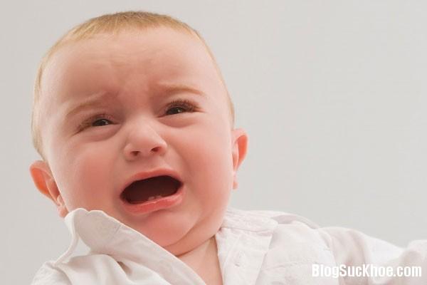 1106 Bệnh tưa lưỡi ở trẻ