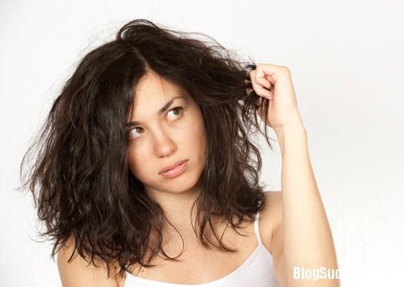 1126 Chẩn đoán bệnh qua mái tóc