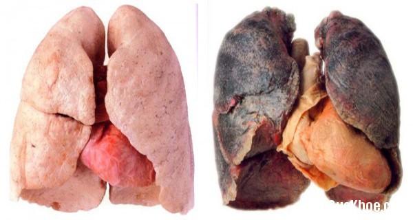 1152 Nước uống thải độc phổi cho người hút thuốc lá