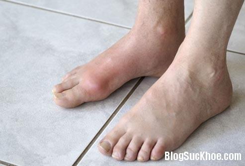1112 Dấu hiệu lạ ở bàn chân cảnh báo bệnh nguy hiểm