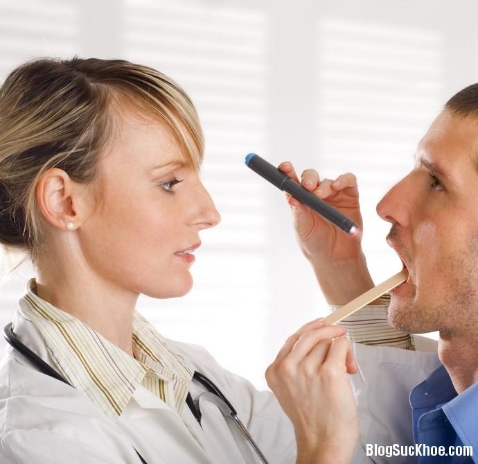 1402 Triệu chứng thường gặp của bệnh ung thư vòm họng