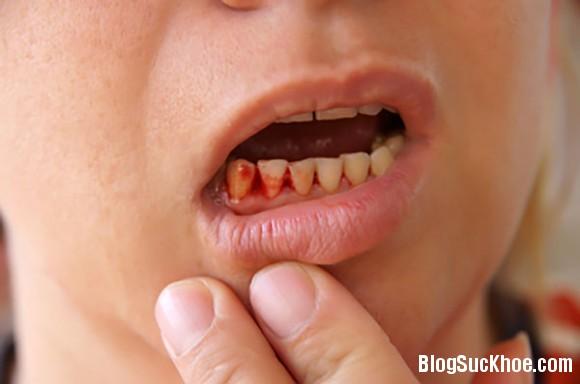 1120 Cách trị chảy máu chân răng hiệu quả nhất