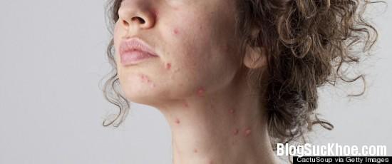 199 Những điều cần biết về bệnh thủy đậu