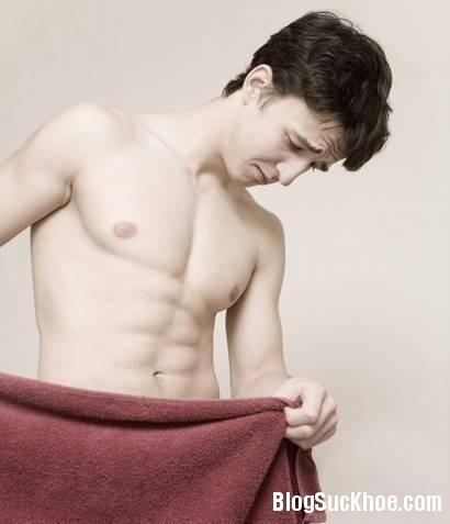 112 Cách chữa trị viêm bao quy đầu hiệu quả