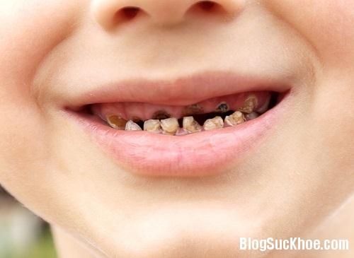 1317 7 điều cần biết khi chăm sóc răng sữa cho trẻ