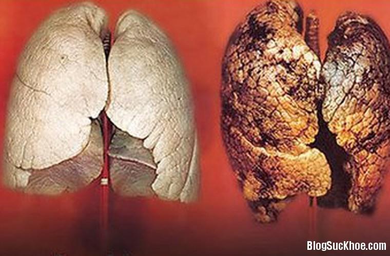 179 Thanh lọc phổi nám đen vì thuốc lá
