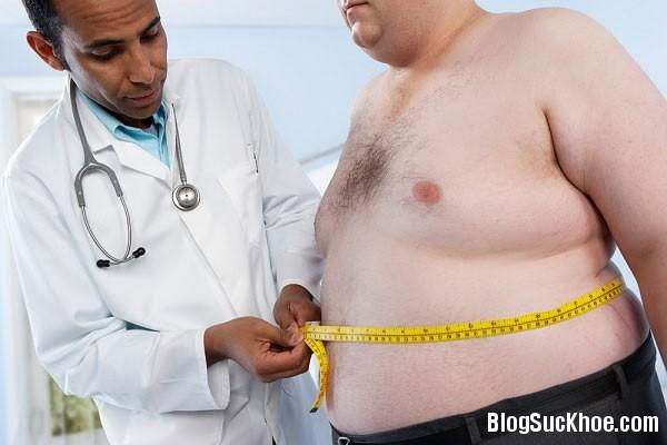 1106 Các loại thuốc điều trị bệnh béo phì