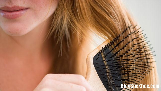 1170 Những nguyên nhân khiến bạn rụng tóc