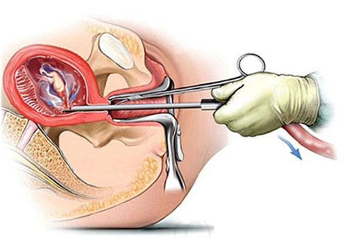 1202 Thông tin cần biết về việc thụ thai sau khi phá thai
