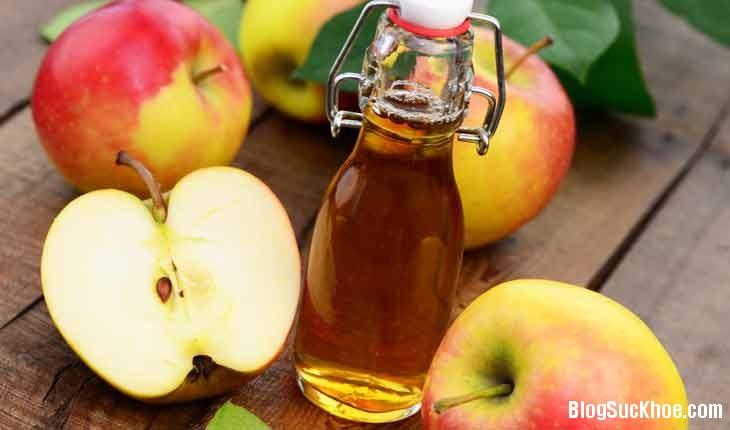 195 Một số thực phẩm trong bếp giúp bạn đối phó khi bị ngộ độc thực phẩm