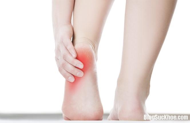 1419 Nguyên nhân gây đau ở gót chân