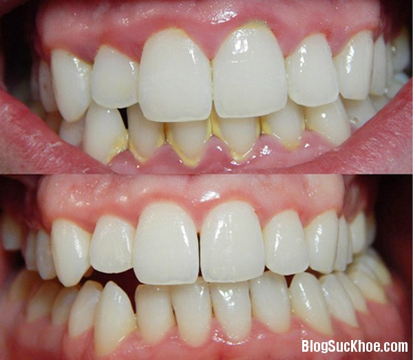1100 Chẳng cần đến nha sỹ bạn vẫn có hàm răng sáng đẹp tuyệt vời