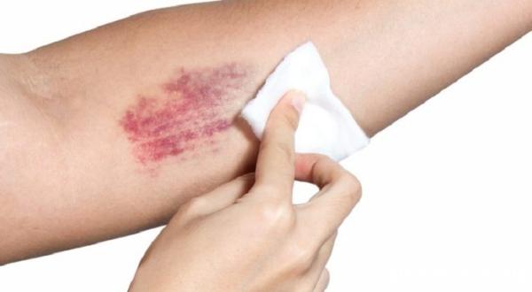 19 Mẹo làm giảm vết bầm tím trên cơ thể