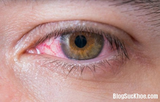199 Gỉ mắt nói gì về sức khỏe của bạn?