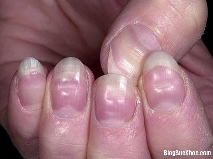 mong tay 1 Những dấu hiệu ở trên móng tay cảnh báo bệnh
