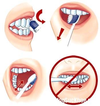 1160 Các phương pháp tẩy trắng răng