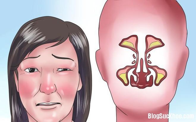 1334 Mẹo chữa nghẹt mũi không cần dùng thuốc