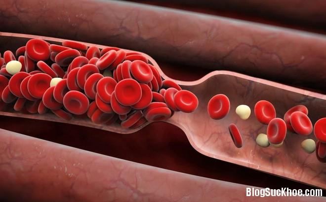 1335 6 dấu hiệu cảnh báo có cục máu đông trong cơ thể